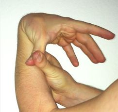 025c164450 Hypermobile EDS, cEDS, and clEDS can be diagnosed using The Beighton  Scoring System along with EDS Types criteria. Here, thumb reaches forearm  in one of its ...